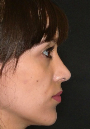 Testimonianza rinoplastica a roma dopo 1