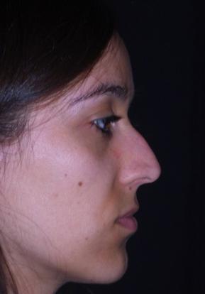 Testimonianza rinoplastica a roma prima 1