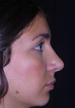 Testimonianza rinoplastica a roma dopo 3